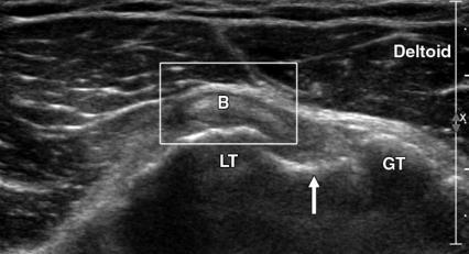 https://upload.orthobullets.com/topic/3046/images/ultrasound.jpg