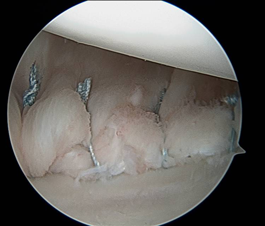 https://upload.orthobullets.com/topic/3050/images/shoulder-arthoscopic labral repair.jpg