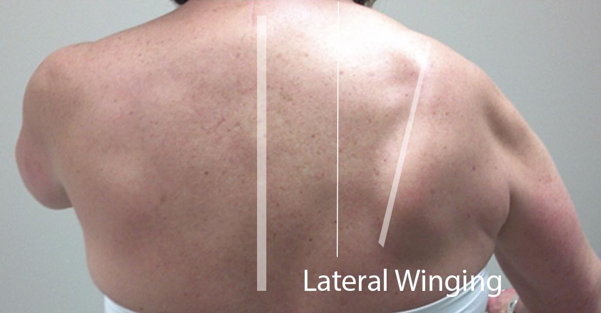 Scapular Winging - Shoulder & Elbow - Orthobullets