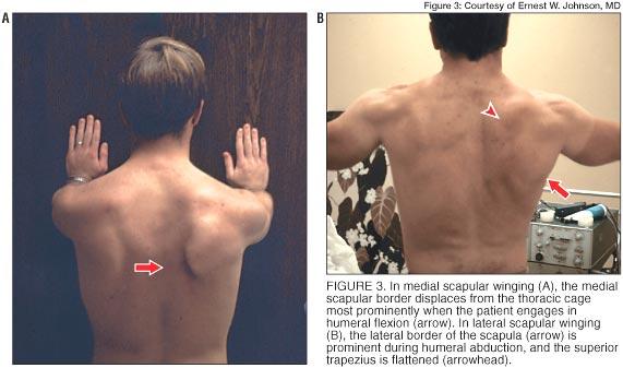 Scapular Winging Shoulder Elbow Orthobullets