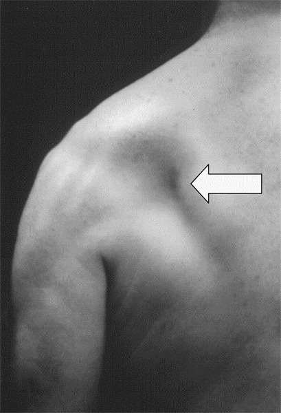 https://upload.orthobullets.com/topic/3063/images/clinical image, infraspinatus atrophy smaller.jpg