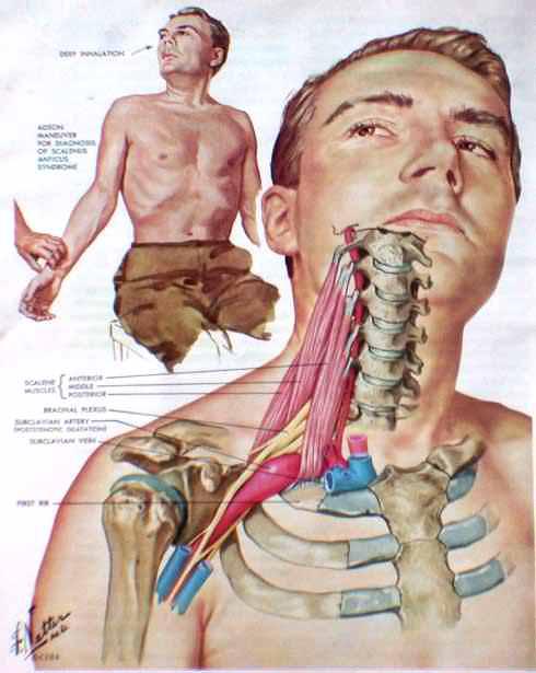 Thoracic Outlet Syndrome Shoulder Elbow Orthobullets