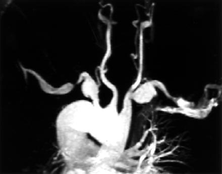 https://upload.orthobullets.com/topic/3064/images/bilateral subclavian aneurysms.jpg