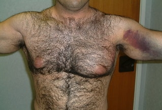 https://upload.orthobullets.com/topic/3069/images/Image A - Pec rupture physical exam_moved.jpg