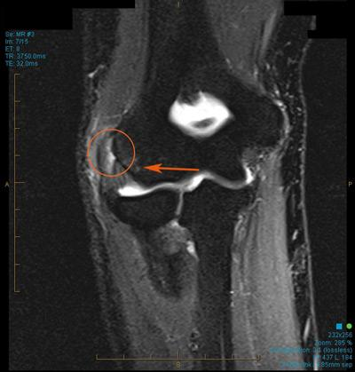 https://upload.orthobullets.com/topic/3082/images/mri elbow.jpg