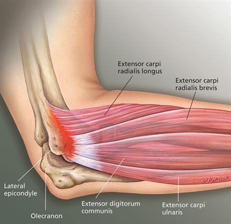 Lateral Epicondylitis Tennis Elbow Shoulder Elbow Orthobullets
