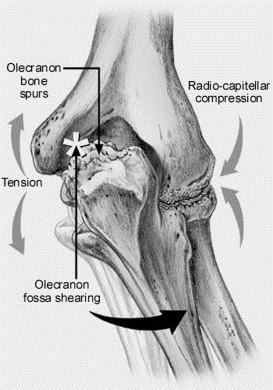 https://upload.orthobullets.com/topic/3084/images/olecranon osteophyte.jpg
