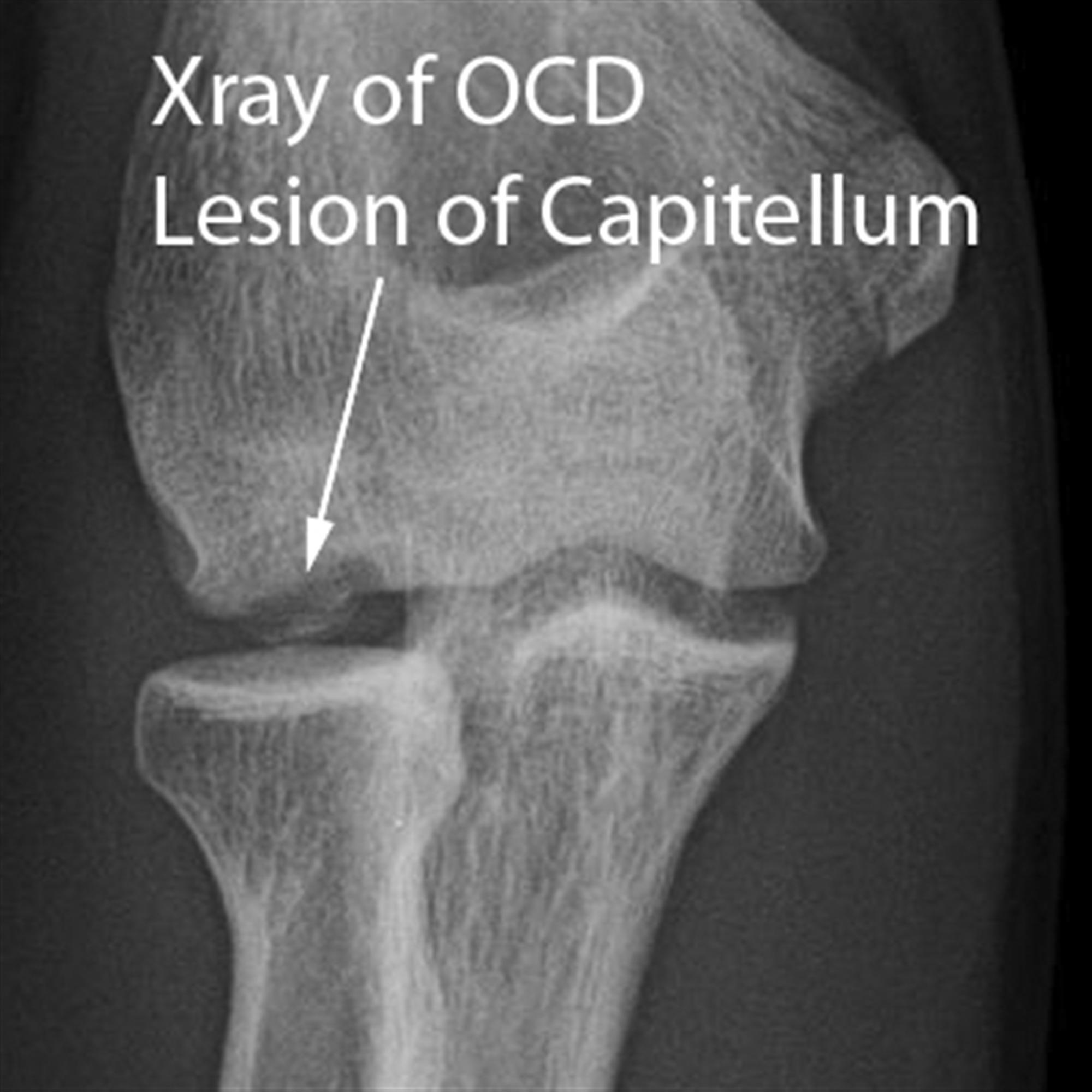 Osteochondritis Dissecans of Elbow - Shoulder & Elbow - Orthobullets
