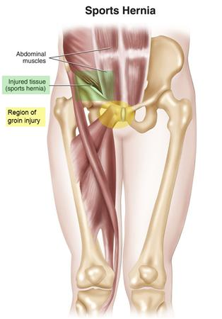 https://upload.orthobullets.com/topic/3092/images/sports hernia.jpg