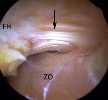 https://upload.orthobullets.com/topic/3100/images/zona_orbicularis_arthroscopic_image.jpg