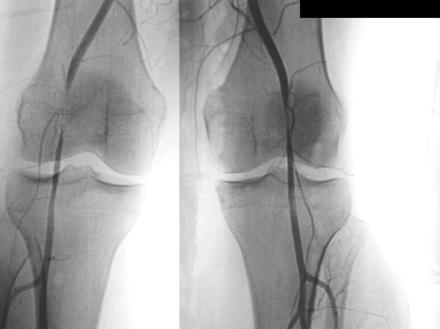 https://upload.orthobullets.com/topic/3107/images/popliteal artery entrapment syndrome image.jpg