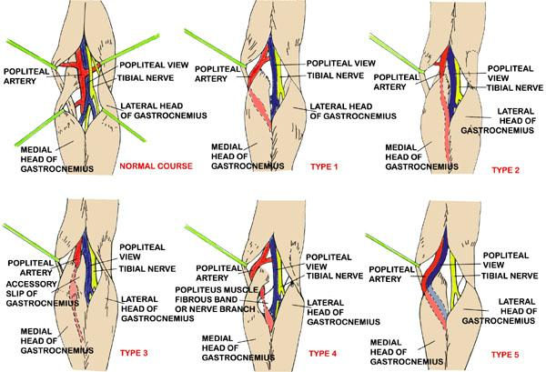 Popliteal Artery Entrapment Syndrome - Knee & Sports - Orthobullets