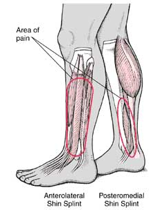 https://upload.orthobullets.com/topic/3108/images/shin-splints location.jpg