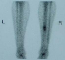 Tibial Stress Syndrome Shin Splints Knee Sports Orthobullets