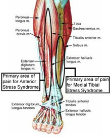 Tibial Stress Syndrome (Shin Splints) - Knee & Sports