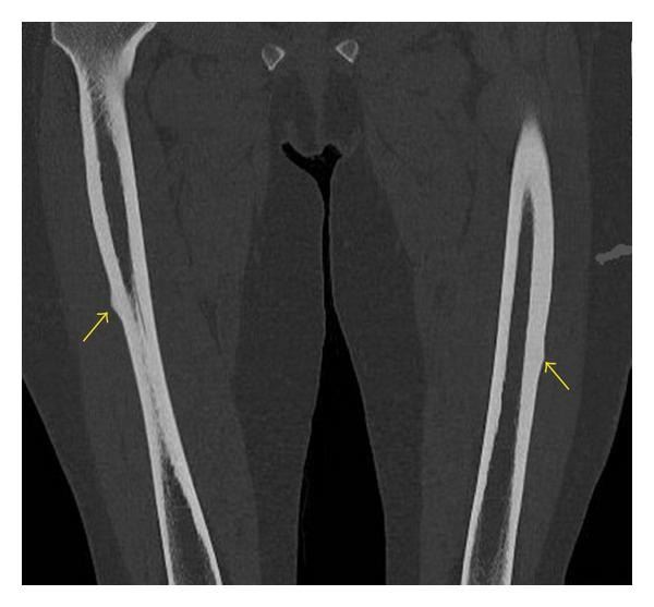 https://upload.orthobullets.com/topic/3111/images/femoral shaft stress fractures ct.jpg