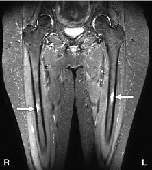 https://upload.orthobullets.com/topic/3111/images/femoral shaft stress fractures mri.jpg