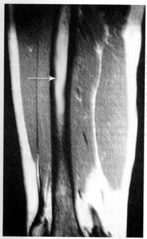 https://upload.orthobullets.com/topic/3112/images/mri - shows edema.jpg