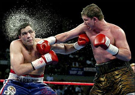 https://upload.orthobullets.com/topic/3113/images/boxing_lg__hematoma.jpg