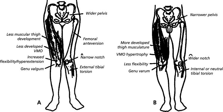 https://upload.orthobullets.com/topic/3125/images/gender differences of the lower extremity.jpg