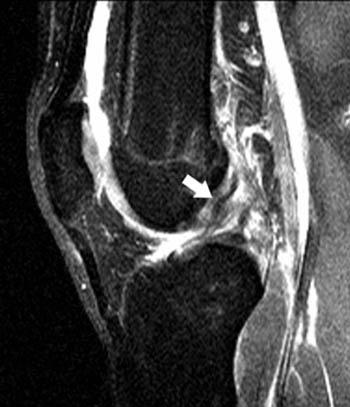 https://upload.orthobullets.com/topic/3125/images/sagittal mri of the knee.jpg