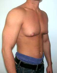 https://upload.orthobullets.com/topic/3126/images/gynecomastia steroids.jpg