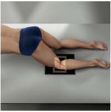 https://upload.orthobullets.com/topic/322085/images/holmblad_kneeling.jpg