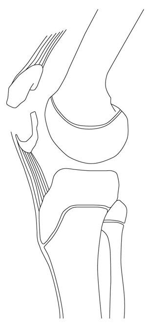 patella sleeve fracture - pediatrics