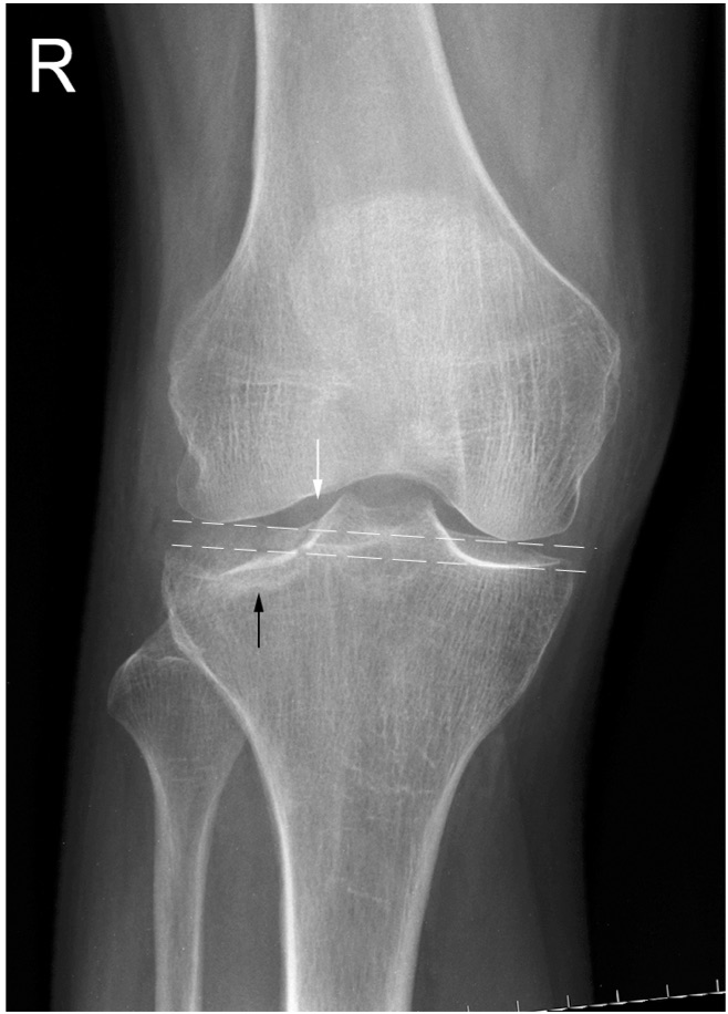 Tibial Plateau Fractures Trauma Orthobullets