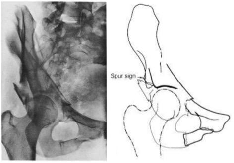 Acetabular Fractures Trauma Orthobullets