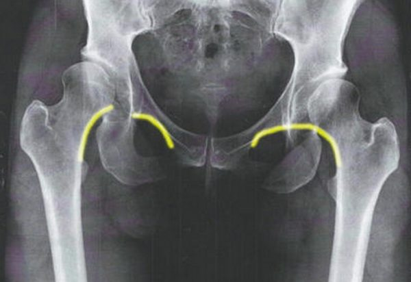Hip Dislocation Trauma Orthobullets