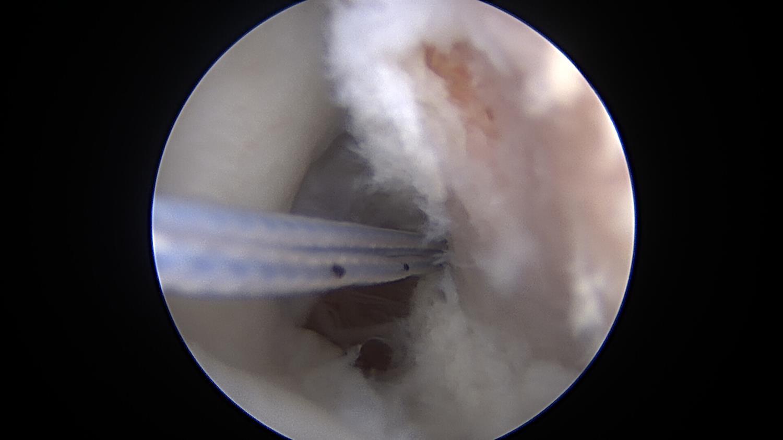https://upload.orthobullets.com/topic/322184/images/bonebed.jpg