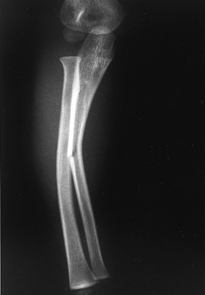 https://upload.orthobullets.com/topic/4002/images/forearm greenstick fx (medcyclopaedia.com).jpg