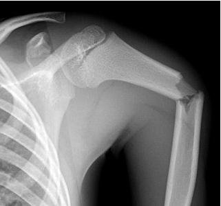 https://upload.orthobullets.com/topic/4005/images/pediatric humerus fracture (2).jpg