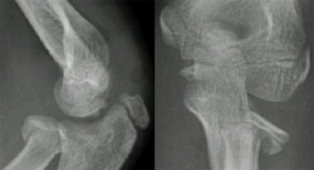 Radial Head And Neck Fractures - Pediatric - Pediatrics ...