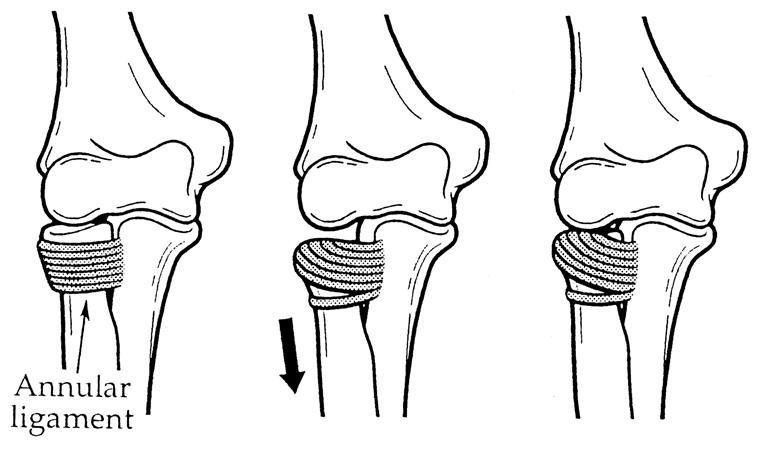 Nursemaid\'s Elbow - Pediatrics - Orthobullets