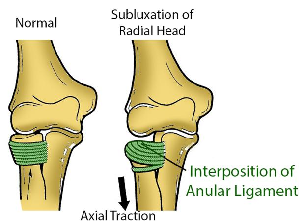 https://upload.orthobullets.com/topic/4012/images/subluxation of radial head.jpg