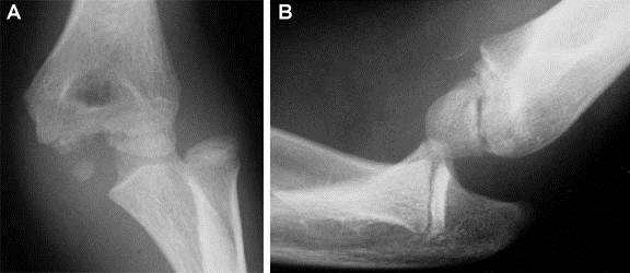 https://upload.orthobullets.com/topic/4013/images/pediatric elbow dislocation and medial epicpondyle fracture.jpg