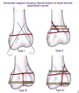 https://upload.orthobullets.com/topic/4020/images/distal_femur_treatment.jpg