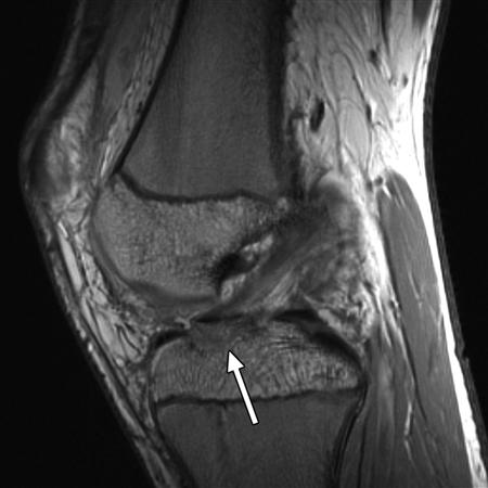 Tibial Eminence Fracture