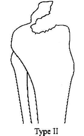 https://upload.orthobullets.com/topic/4022/images/tibial eminence classification 2.jpg