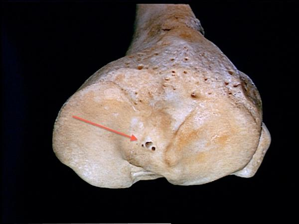 https://upload.orthobullets.com/topic/4022/images/tibial eminence.jpg