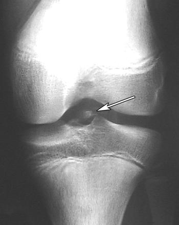 https://upload.orthobullets.com/topic/4022/images/tibial spine key image.jpg