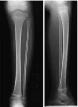 Tibial Shaft Fracture - Pediatric - Pediatrics - Orthobullets