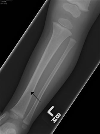 https://upload.orthobullets.com/topic/4026/images/tibial.jpg