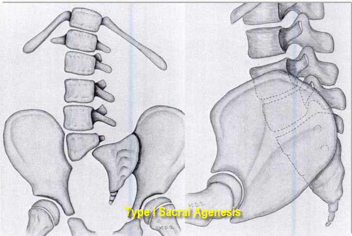Sacral Agenesis - Pediatrics - Orthobullets