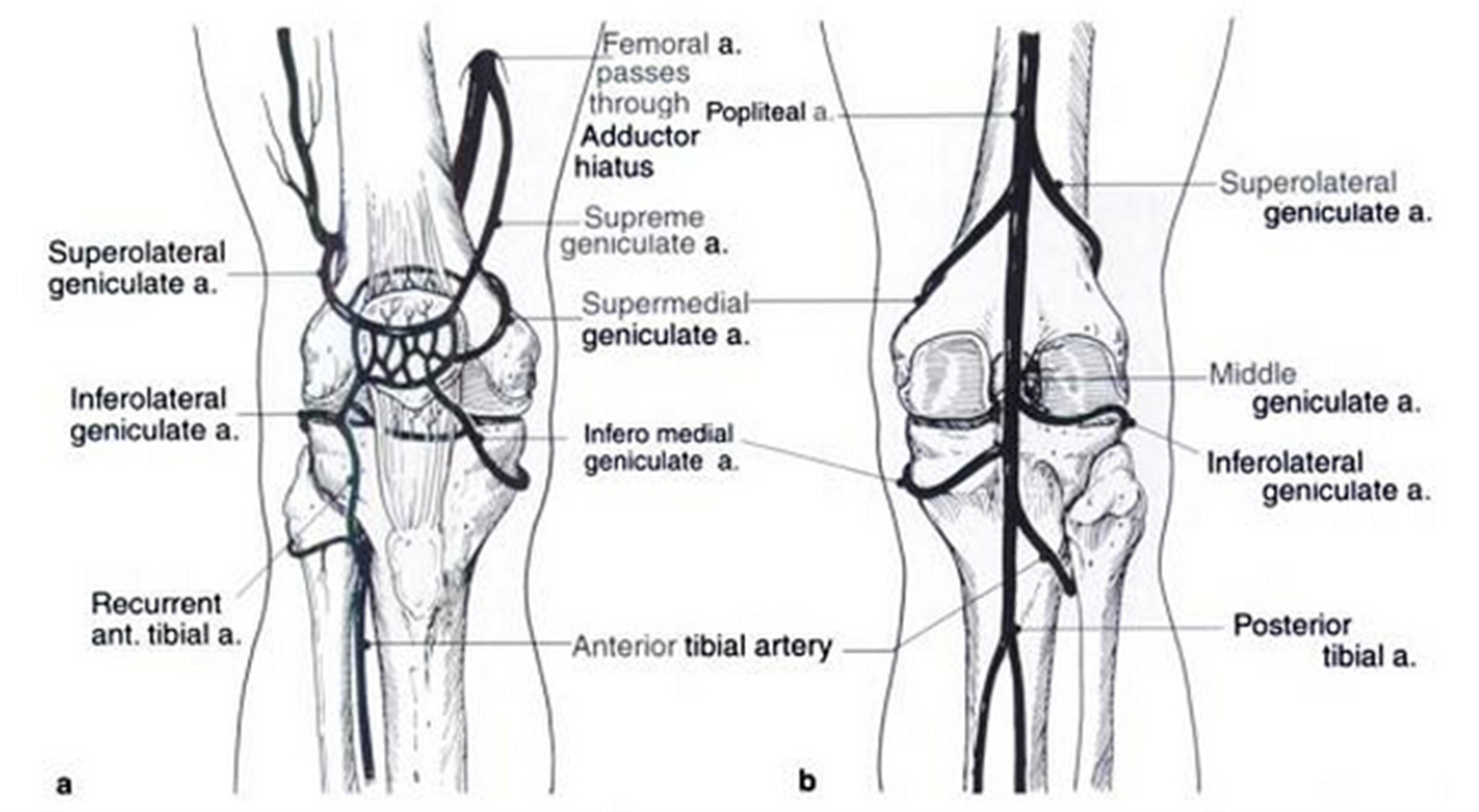 Congenital Dislocation of Patella - Pediatrics - Orthobullets