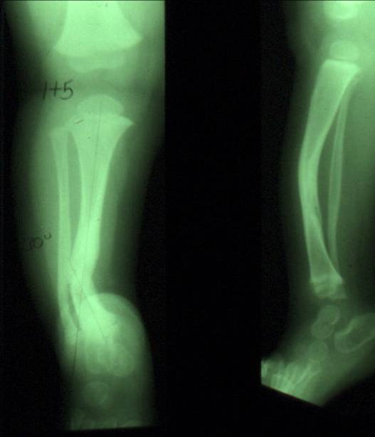 https://upload.orthobullets.com/topic/4054/images/pseudoarthrosis - courtesy of Miller_moved.jpg