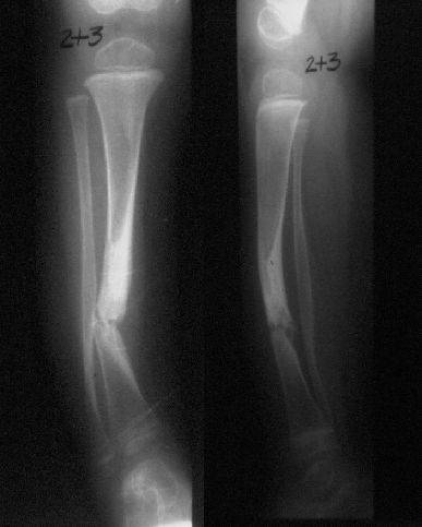 https://upload.orthobullets.com/topic/4056/images/Congenital pseudo xray - courtesy Miller_moved.png