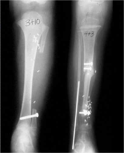 https://upload.orthobullets.com/topic/4056/images/Free fibula graft - courtesy Miller_moved.png